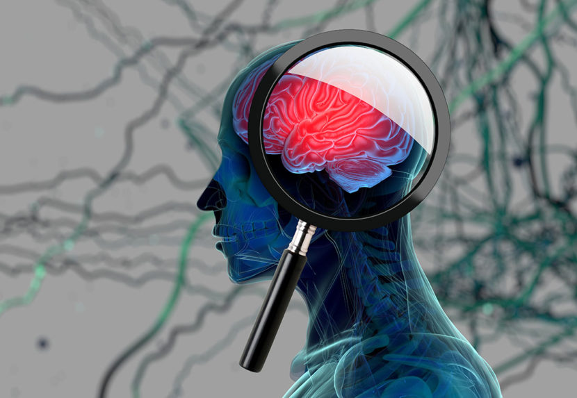 3-D scan of a person's brain with magnifying glass